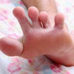 Mycose du pied (ou « pied d'athlète »)