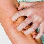 Les meilleures astuces pour soulager des piqûres de moustiques