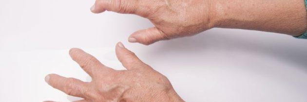 Naturopathie et traitement de l'arthrite