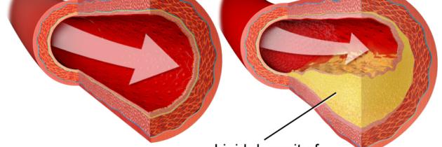 L'Athérosclérose : formation de la plaque d'athérome