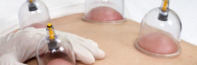 Hijama – La médecine des ventouses ou Cupping Therapy